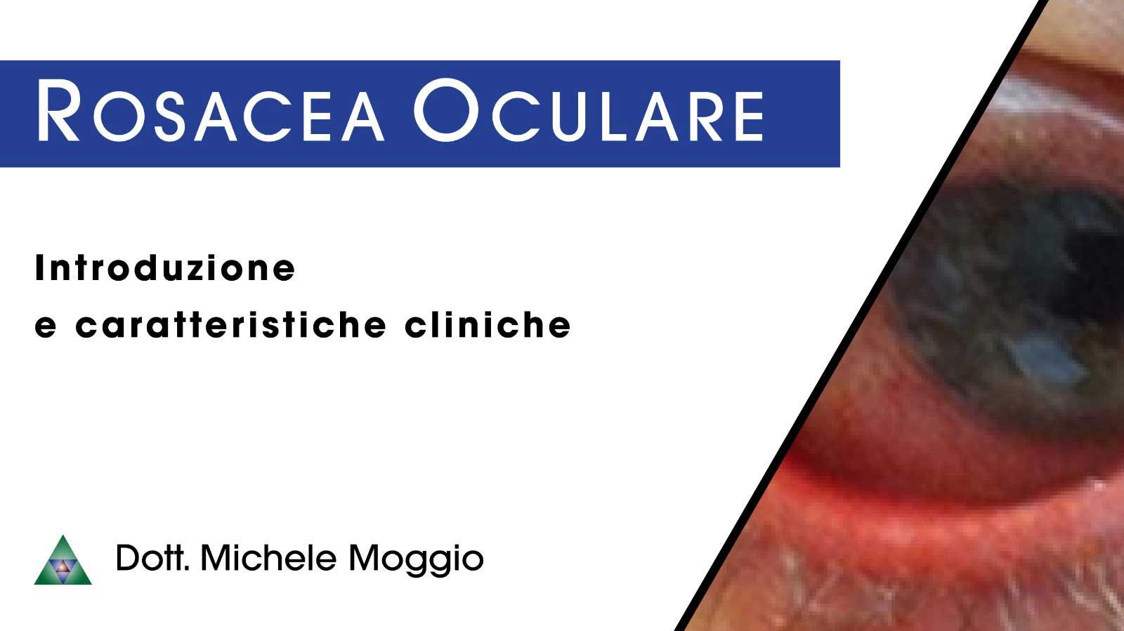 rosacea oculare - introduzione