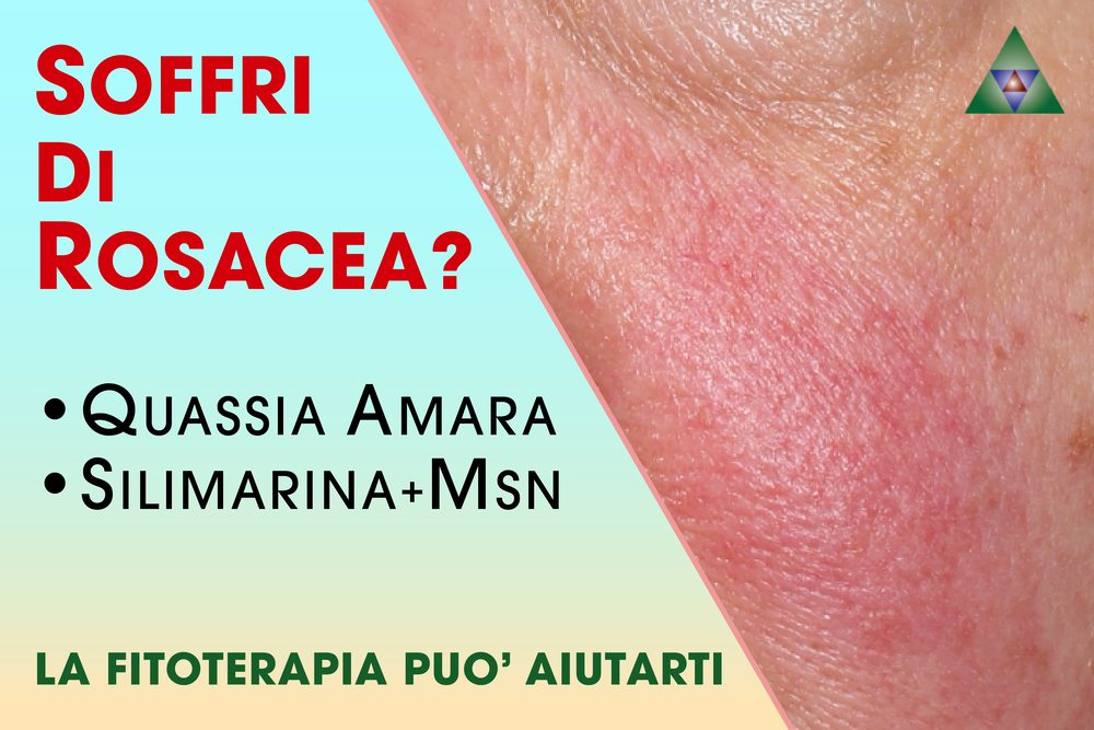 Fitoterapia per la cure della rosacea