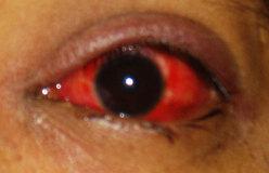 rosacea oculare (fase avanzata)