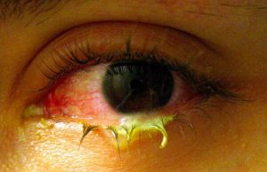 rosacea oculare (fase intermedia)